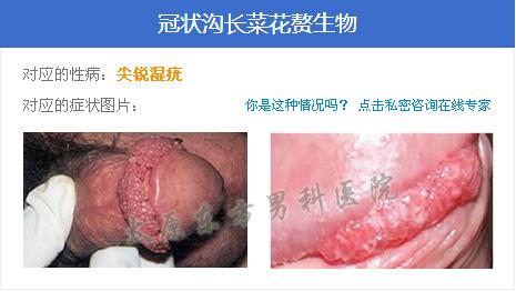太原医院男科_小店区亲贤北街288号太原市东方男科医院有限