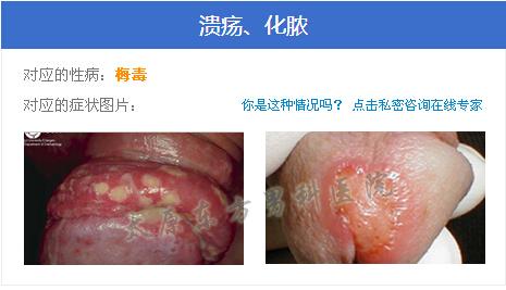 太原医院男科_太原淋病医院网上预约_太原东方男科医院资讯